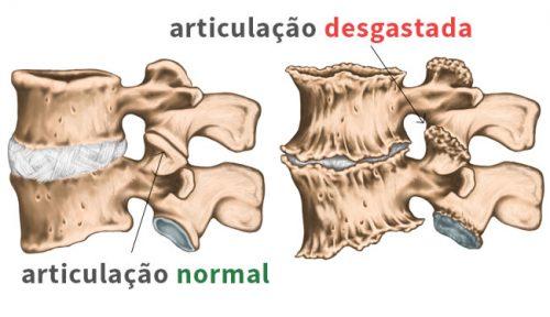 artrose na coluna articulações