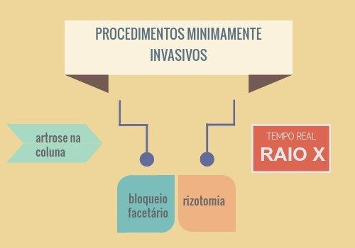 artrose procedimentos minimamente invasivos